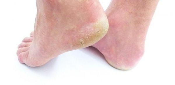 zniszczone pięty z popękaną skórą