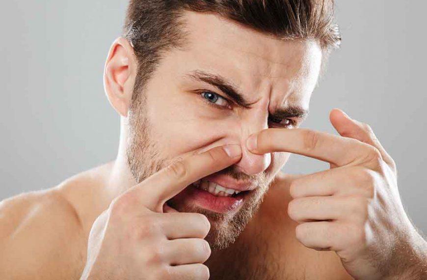 Wyciskanie wągrów na twarzy