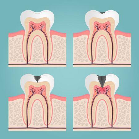 Zdjęcie przedstawiające 4 rodzaje zębów: zdrowy, z małym ubytkiem, ząb z dużym ubytkiem oraz ząb wymagający lecznica kanałowego
