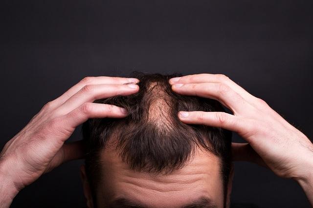 łysiejączy mężczyzna dotyka włosów