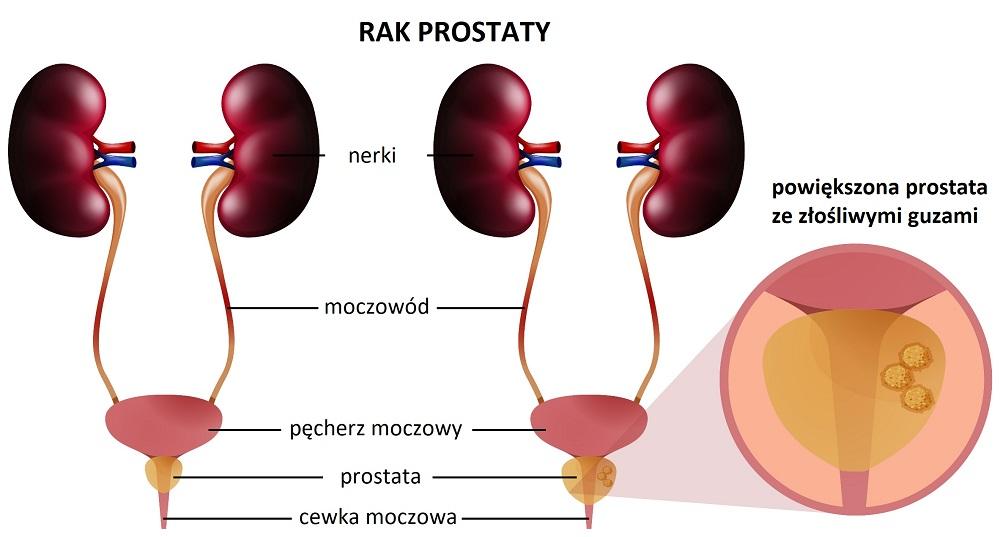 Rysunek przedstawiający powiększenie pęcherza moczowego i prostaty w przypadku choroby