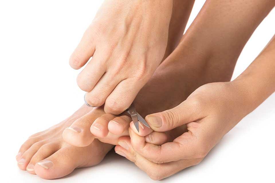 Wrastające paznokcie domowe sposoby