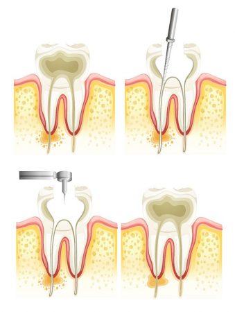 Leczenie endodontyczne polega na dokładnym wyczyszczeniu kanałów zęba