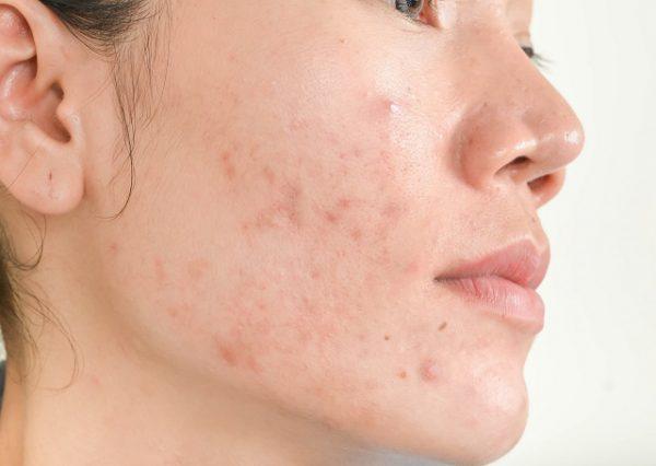 Kobieta cierpiąca na problemy skóry w postaci trądziku