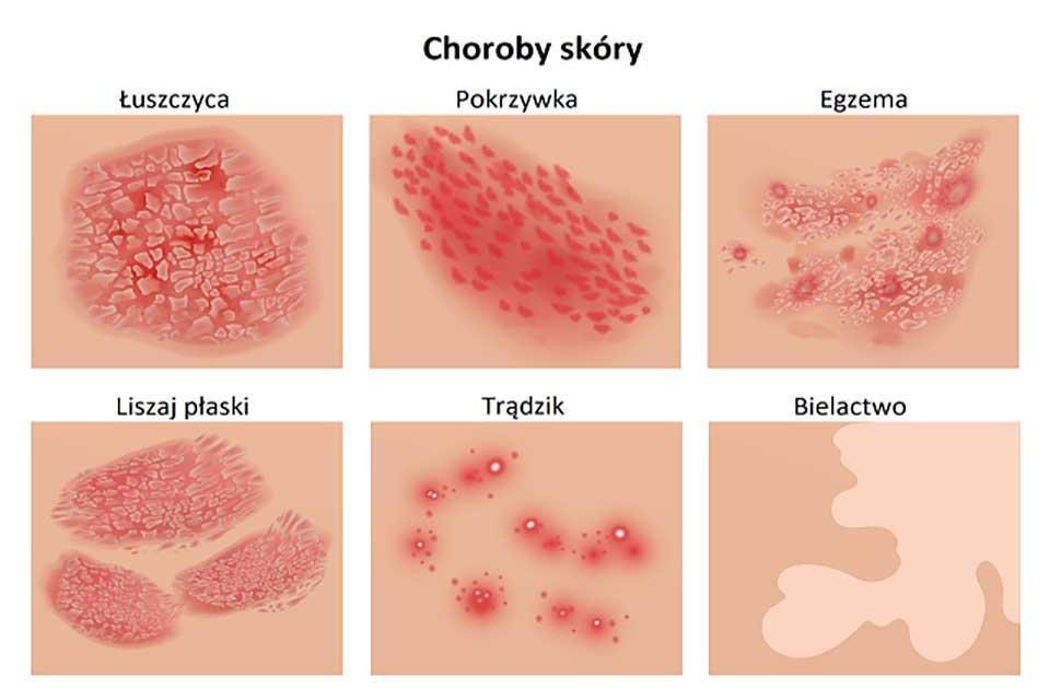 choroby skóry - łuszczyca, pokrzywka, egzema, liszaj płaski, trądzik, bielactwo