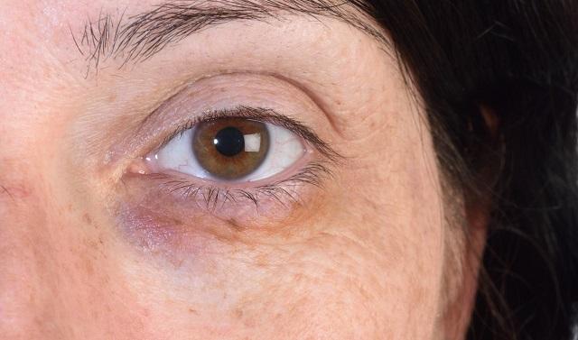 Kobieta stosowała okłady z lodu w miejscu uszkodzenia naczyń krwionośnych, aby podbite oko nie było bardzo widoczne
