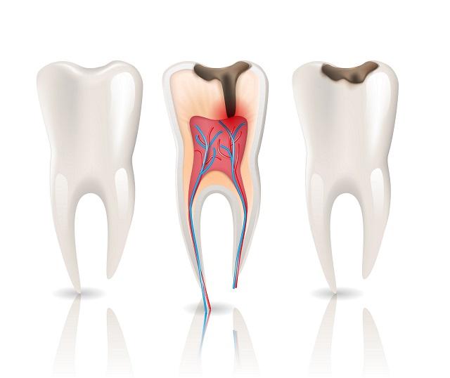 Od lewej: zdrowy ząb, ząb z zapaleniem kanałowym, ząb z ubytkiem