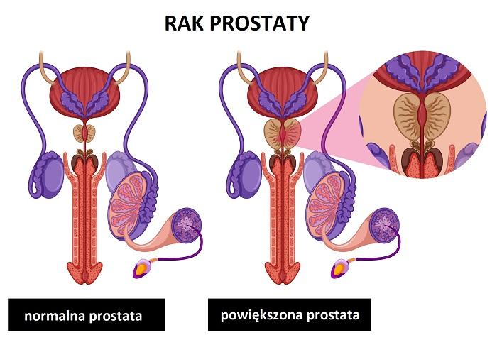 Powiększony rozrost prostaty to jedna z niebezpiecznych chorób wieku starczego