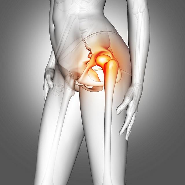 Ból przedniej powierzchni uda jest częstym objawem rwy kulszowej