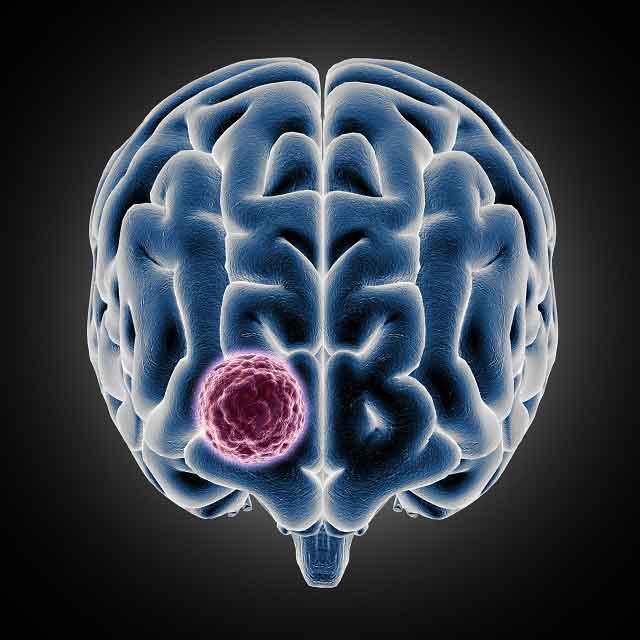 Zdjęcie przedstawia guza mózgu