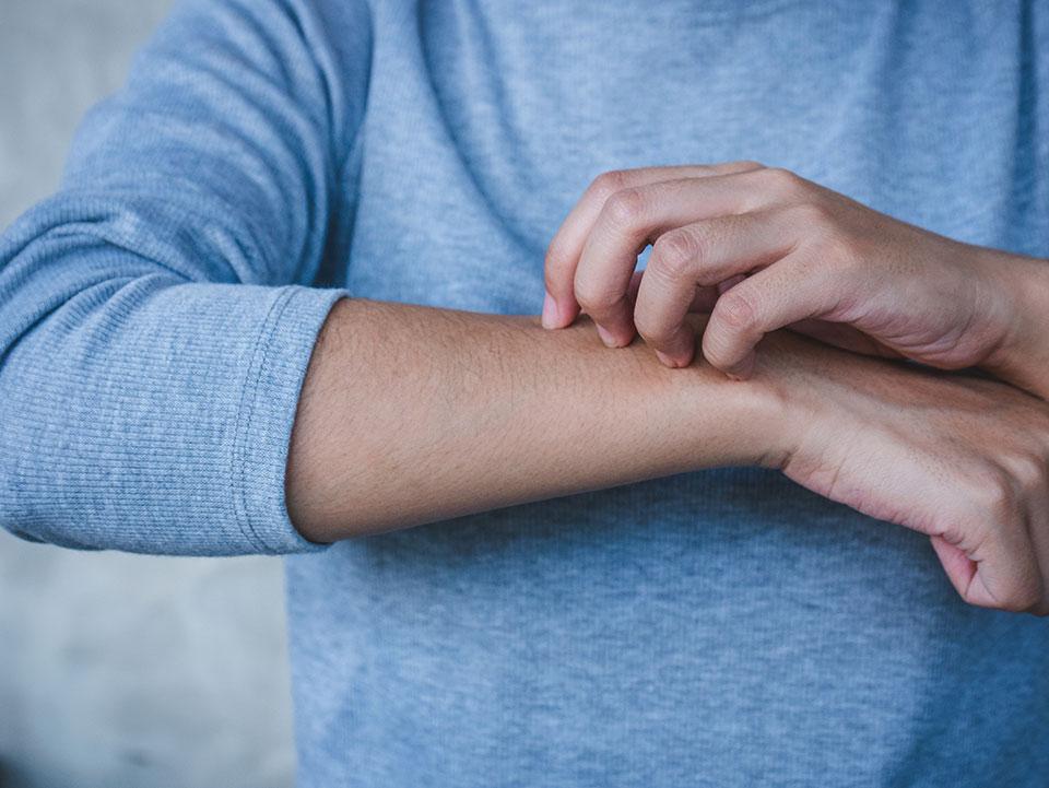 Mężczyzna drapie się po ręce w miejscu, gdzie wystąpiły objawy świerzbu