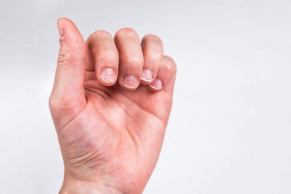 Białe plamy na paznokciach pojawiają się u dzieci oraz dorosłych