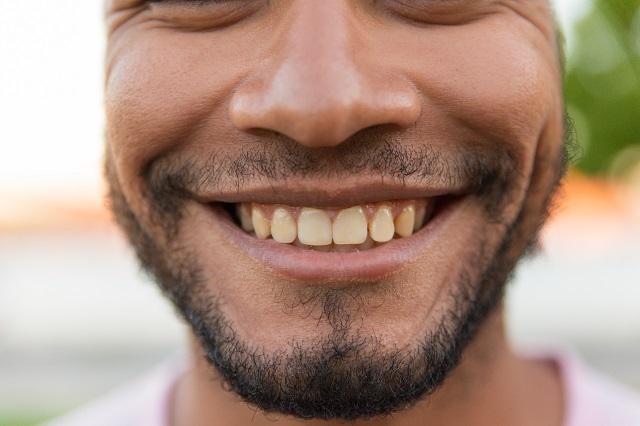 Uśmiechający się mężczyzna, który ma żółty kolor szkliwa zębów z powodu palenia papierosów