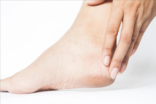 Popękane pięty kobiety mogą powodować ból i zakażenia