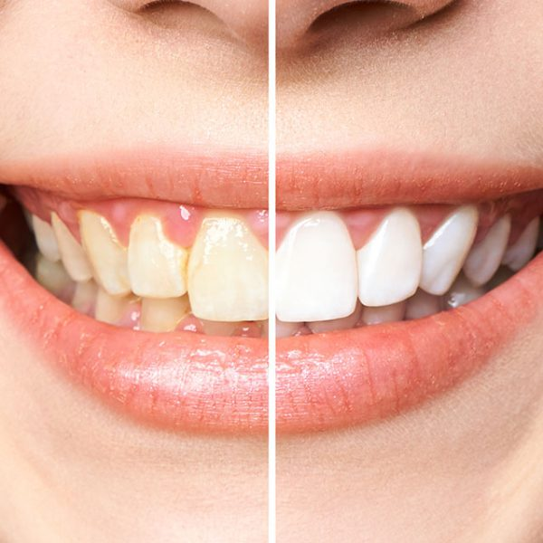 Odwapnienia na zębach