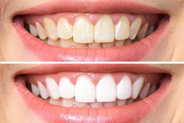 Na górze zęby koloru żółtego, które powoduje kawa, herbata, papierosy. Na dole zdrowe, białe zęby