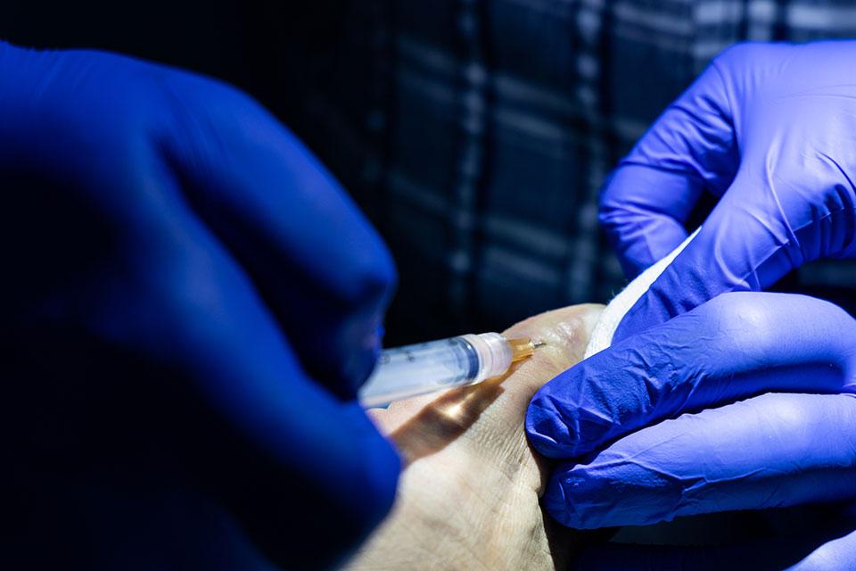 Paluch koślawy – przyczyny i sposoby leczenia